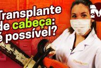 Transplante de Cabeça: será que isso é possível?